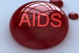 AIDS: IN SICILIA MENO CASI, RISPETTO ALLA MEDIA NAZIONALE