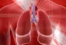 Siracusa| Formazione su spirometria nella medicina di gruppo