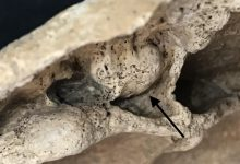 Siracusa| Tumore nell'antichità. Scoperta scientifica anche siracusana