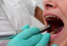 Siracusa| Piano Strategico vaccinale antiSars-CoV-2/Covid-19: esclusi gli odontotecnici